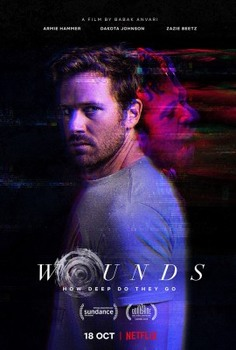 Wounds (2019) ITA - STREAMiNG